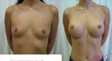 1554282788_plastična hirurgija povećavanje grudi galerija 31
