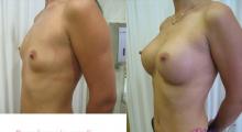 1554282794_plastična hirurgija povećavanje grudi galerija 38