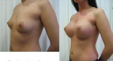 1554282803_plastična hirurgija povećavanje grudi galerija 55