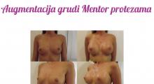 1554282818_plastična hirurgija povećavanje grudi galerija 62