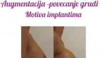 1554282825_plastična hirurgija povećavanje grudi galerija 65