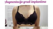 1554282842_plastična hirurgija povećavanje grudi galerija 71