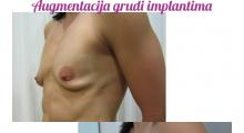 1554282849_plastična hirurgija povećavanje grudi galerija 74