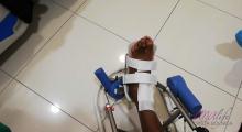 1554539364_02.fizikalna medicina i rehabilitacija bolesti skočnog zgloba galerija