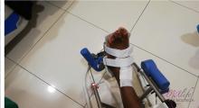 1554539364_03.fizikalna medicina i rehabilitacija bolesti skočnog zgloba galerija