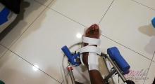 1554539383_11.fizikalna medicina i rehabilitacija bolesti skočnog zgloba galerija