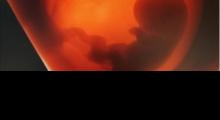1556638421_trudnoća 4D 3D ultrazvučni pregled do 9 nedelje trudnoće galerija 8