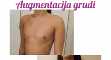 1559918494_plastična hirurgija povećavanje grudi galerija 56