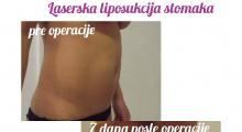 1560347812_plastična hirurgija laserska liposukcija stomaka struka ledja galerija 16