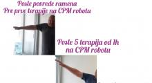 1561387448_10.fizikalna medicina i rehabilitacija bolesti ramenog zgloba galerija