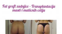 1564830571_plastična hirurgija transplantacija masti i matičnih ćelija u zadnjicu galerija 12