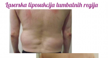 1564918197_plastična hirurgija laserska liposukcija stomaka struka ledja galerija 17