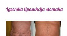1565550325_plastična hirurgija laserska liposukcija stomaka struka ledja galerija 18