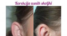 1566734038_plastična hirurgija operacije ušiju galerija 33