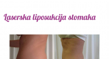 1568278384_plastična hirurgija laserska liposukcija stomaka struka ledja galerija 19