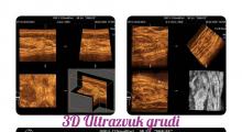1581708733_01.2D 3D ultrazvuk dojke pazušnih jama podključnih i nadključnih regija galerija