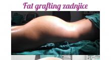 1583269168_plastična hirurgija transplantacija masti i matičnih ćelija u zadnjicu galerija 14