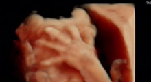 1587741035_45.trudnoca ekspertski 4D ultrazvuk od 20 24 nedelje trudnoce galerija