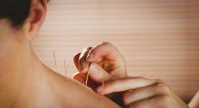 1602515230_03.fizikalna medicina i rehabilitacija akupunktura galerija