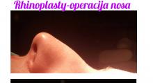 1614683119_plastična hirurgija operacija nosa galerija 51